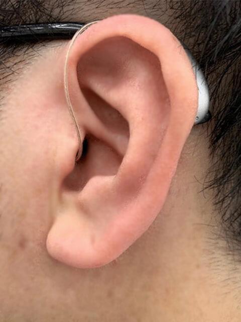 耳かけ型・耳かけアメイズ補聴器